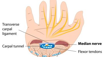 Top-5-Facts-About-Carpal-Tunnel-Syndrome